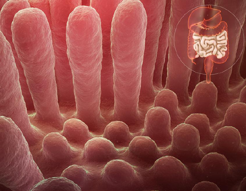 La enfermedad celíaca en el paciente con diabetes mellitus tipo 1