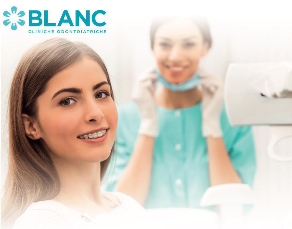 Denti storti? Scegli l'apparecchio ortodontico giusto per te!
