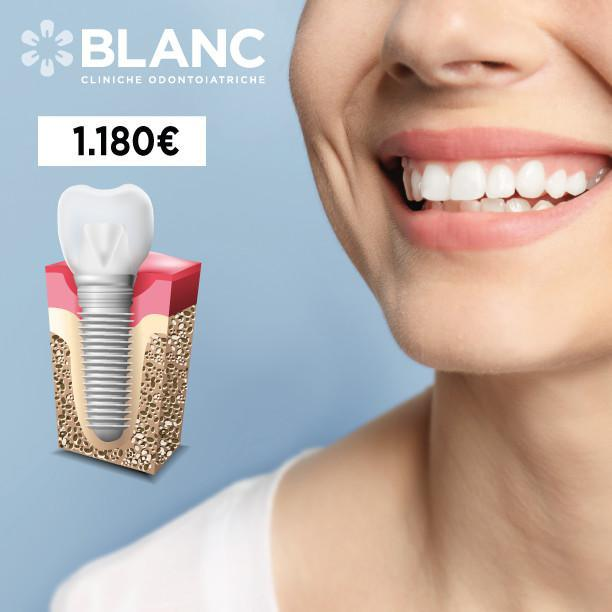Mancanza di un dente singolo?