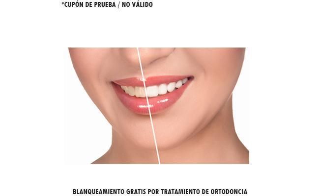Blanqueamiento Gratis por tratamiento de ortodoncia. Consulta para frenos Gratis