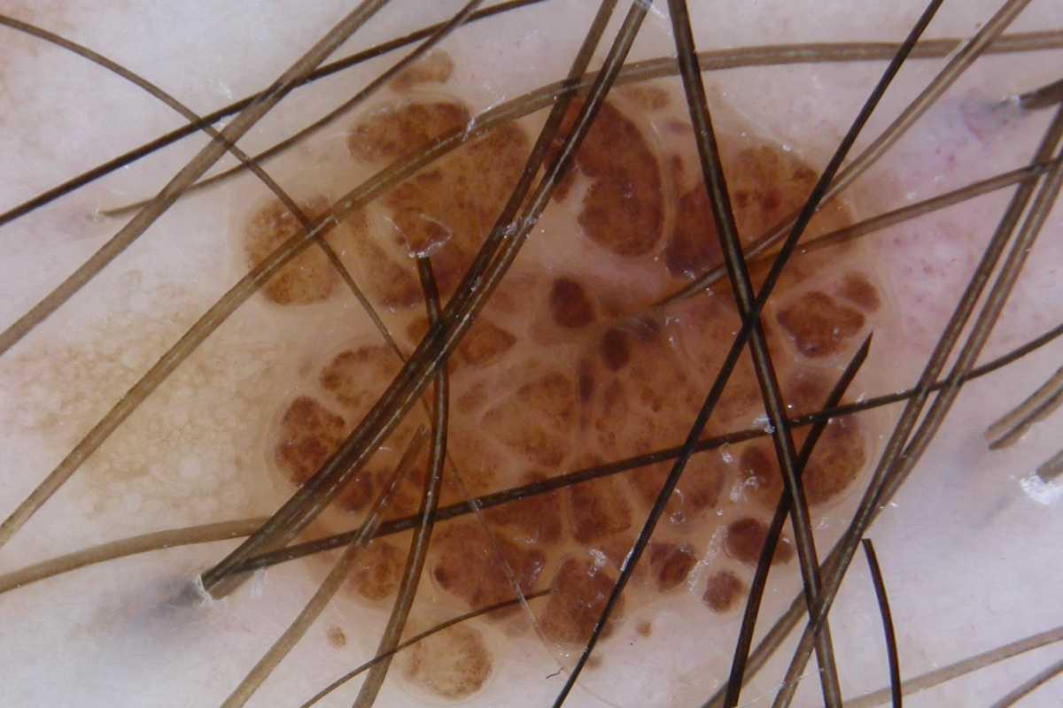 17. TUMORES MELANOCÍTICOS: NEVOS Y MELANOMAS