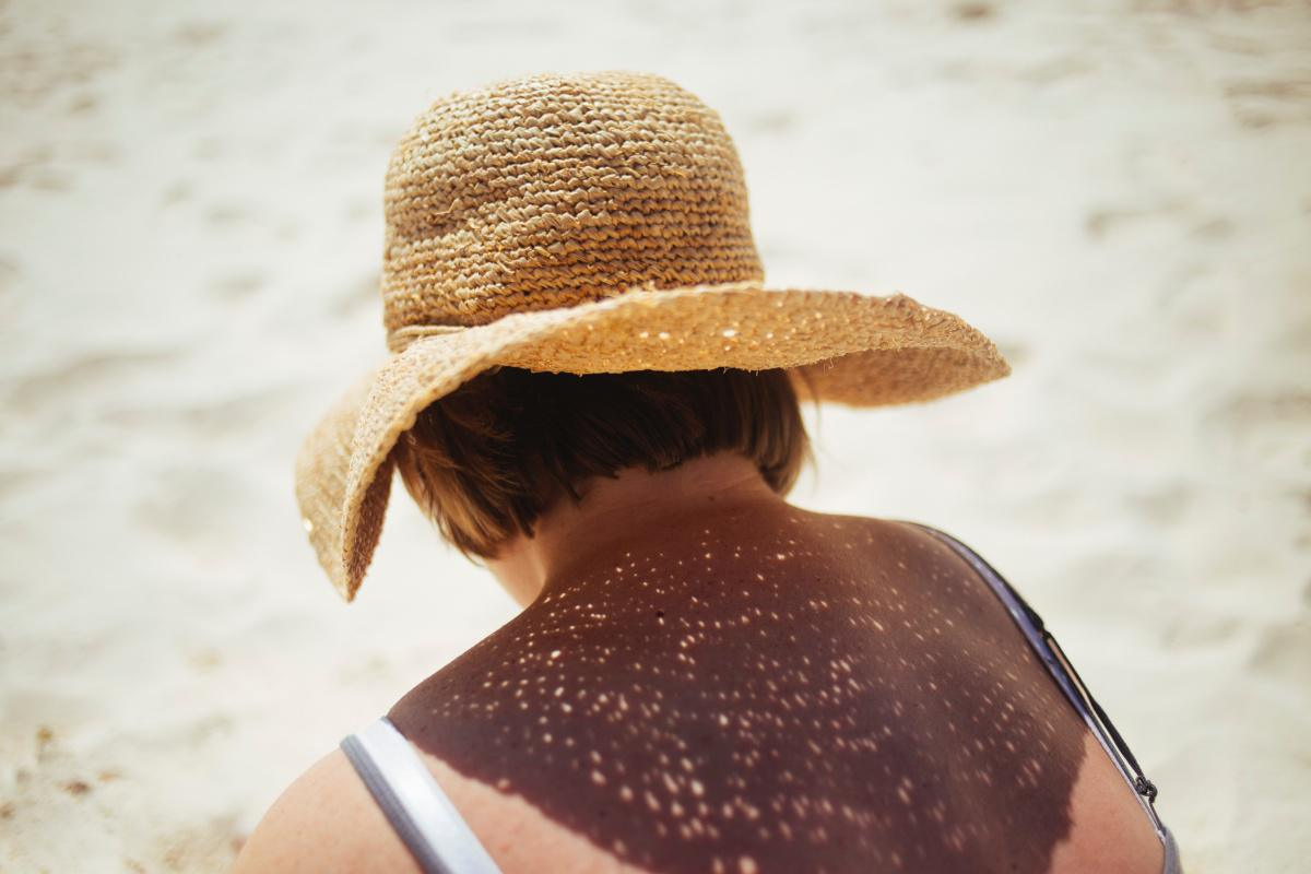 IL SOLE: UN NEMICO O UN AMICO PER LA NOSTRA PELLE?