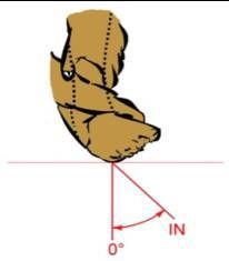 X-CARD 17: Ist Ihr Sprunggelenk fit ?