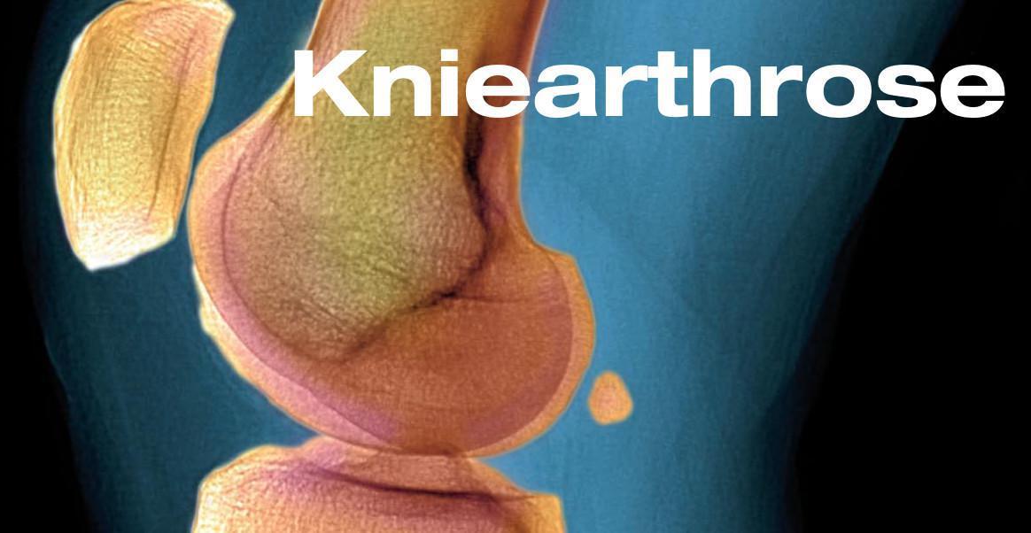 ArthroseJournal: Gonarthrose - State of the Art