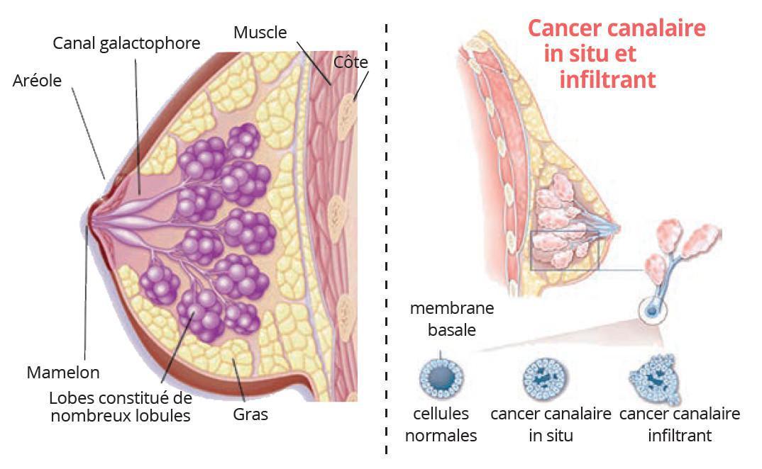 CANCER DU SEIN : L'IMPORTANCE D'UN DÉPISTAGE PRÉCOCE