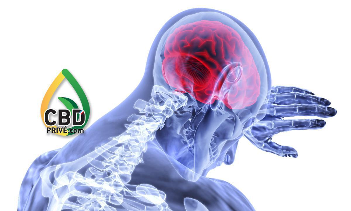 le CBD et l'épilepsie