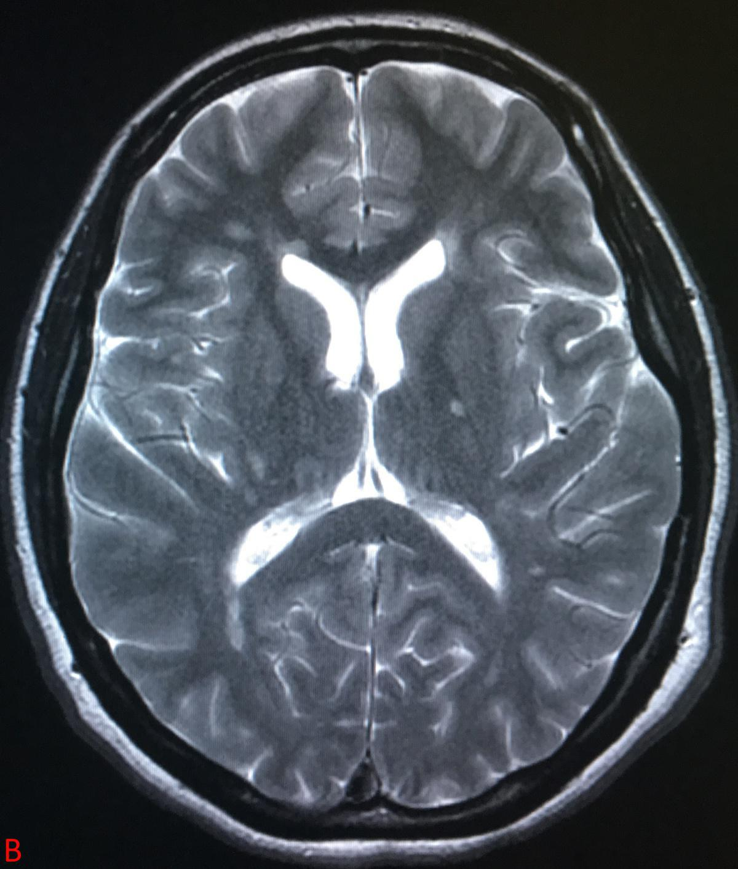 L'image radiologique de Karim