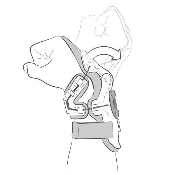 PROTETOR PUNHO X8 Mobius - O que e isso?